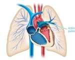 Hypertension artérielle pulmonaire