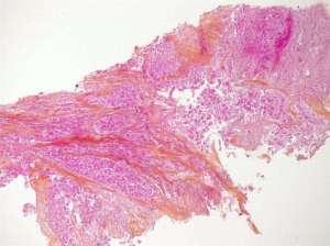 Impact thérapeutique de l'imagerie TEP-FDG en carcinologie bronchopulmonaire