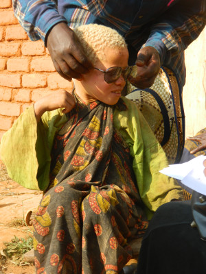 Photo 9. A child with albinism, living with her grandmother, who was interviewed during the census of people with albinism carried out by Tulime Onlus in 2012. The photo shows the moment when she received a pair of sunglasses from a local Tulime volunteer. | 2012 © Giorgio Brocco