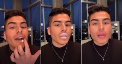 VIDEO: Dečko pokazao kako povećati usne