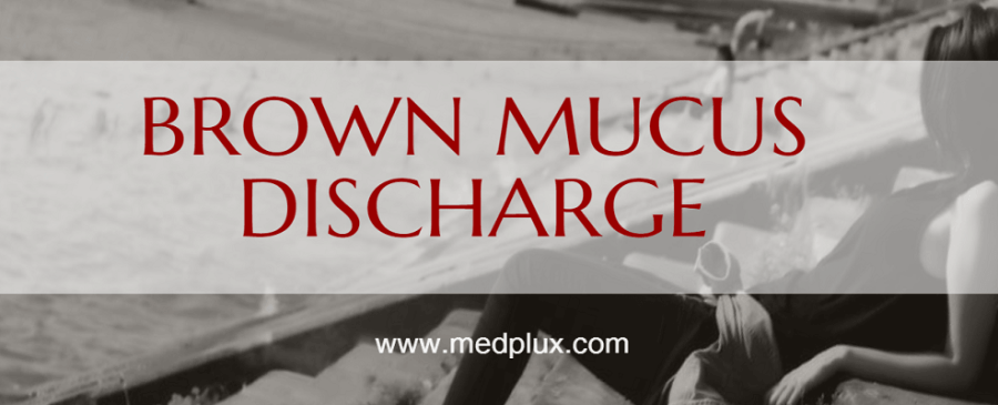 Brown Mucus Discharge: 7 MAIN Causes Before or After Period