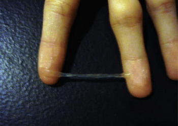 cervical-mucus-egg-white-cm