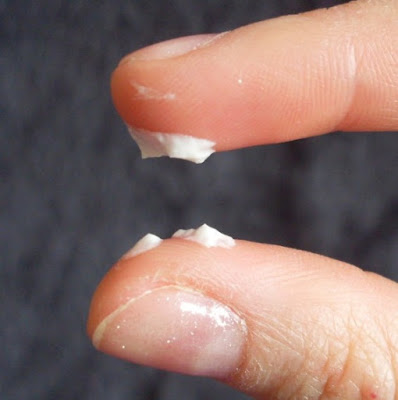 Milky White Discharge Or Pregnancy 5 Main Causes Before Or After Period