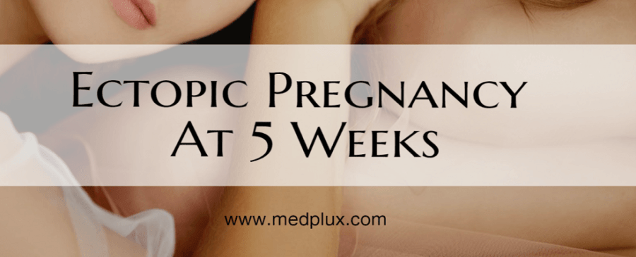 Ectopic Pregnancy at 5 Weeks Symptoms, Causes, Rates, Rupture Signs