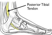 posterior tibial tendon