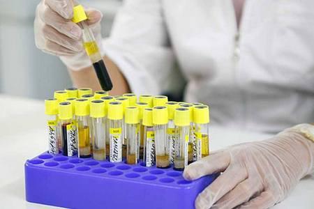 Визначення рівня білірубіну в крові у чоловіків (вікові норми)