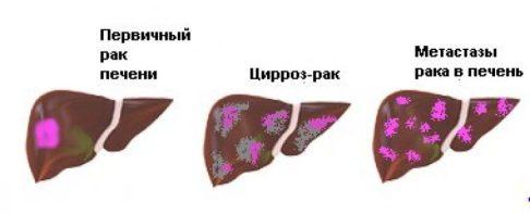 priciny raka pecheni