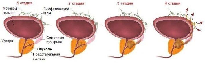 Рак передміхурової залози: можливі симптоми і принципи лікування