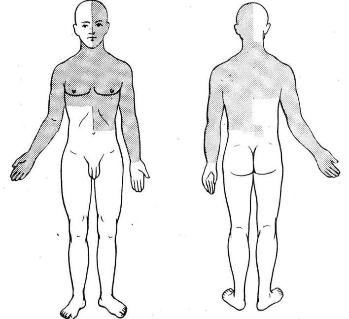 сирингомієлія