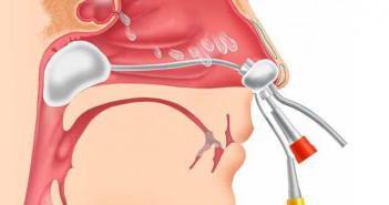 вазомоторный ринит симптомы и лечение у взрослых лечение проводит только специалист