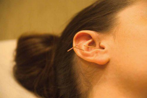 иглорефлексотерапия для ушей