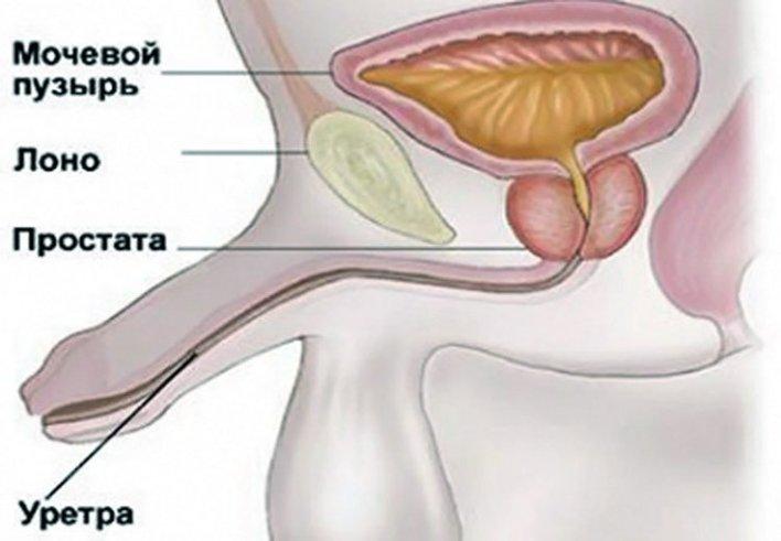 Запалення уретри у чоловіків: ознаки і лікування
