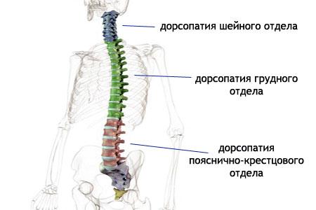 Дорсопатия-симптомы
