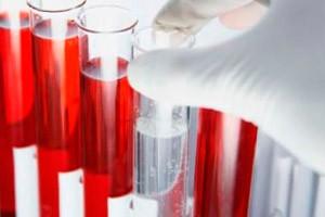 Если повышен уровень лейкоцитов