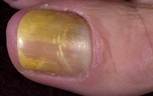 Симптомы микоза-грибка ногтей