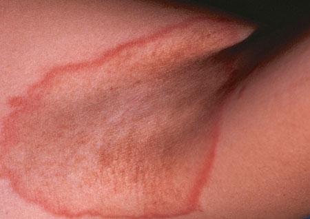 Контактный дерматит под мышками