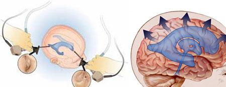 Лечение гидроцефалии головного мозга