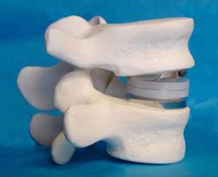 Лечение грыжи в шейном отделе позвоночника