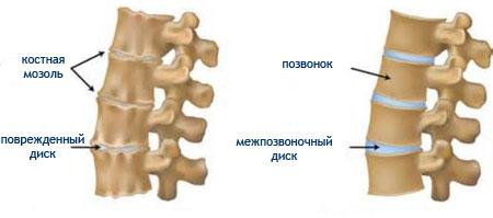 Причины развития спондилоартроза