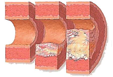 Симптомы атеросклероза сосудов головного мозга