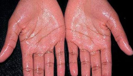Симптомы гипергидроза