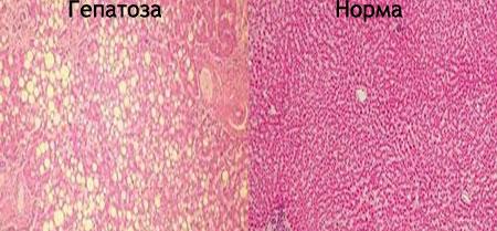 Симптомы жировой гепатозы печени