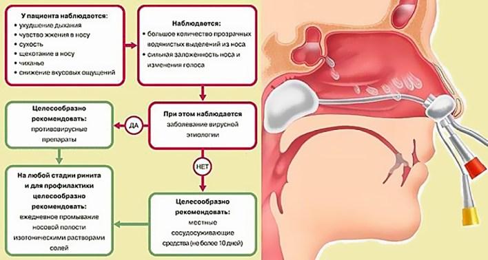 Vazomotornyj-i-allergicheskij-rinit