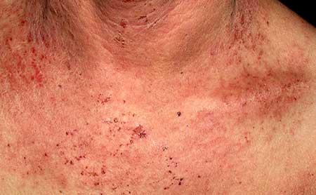 проявления болезни, фото 2
