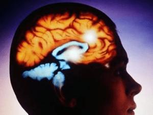 Церебральный арахноидит