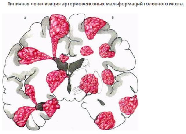 Артериовенозная мальформация