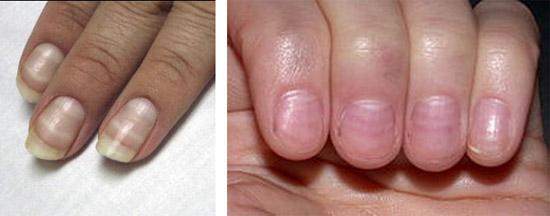 линии на ногтевых пластинах