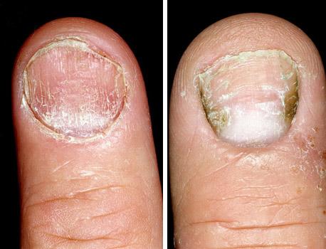 болезни ногтей - псориаз и экзема