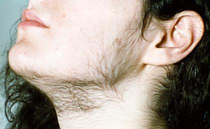 Борода у женщины, из-за чего?