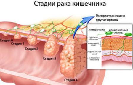 cancer-development-4-stadia