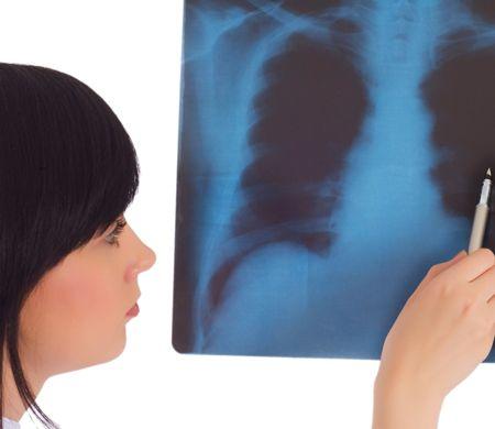 Диагностика: бронхит или пневмония?
