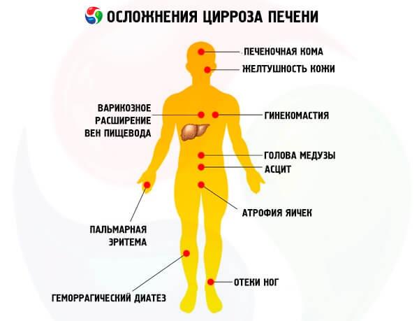 cirroz-pecheni-oslozhneniya