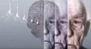 Слабоумие и деменция