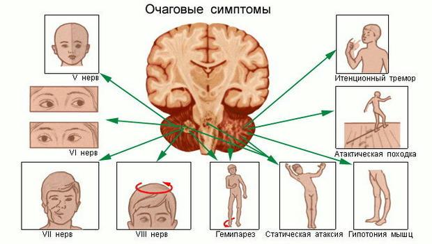 Вогнищева неврологічна симптоматика