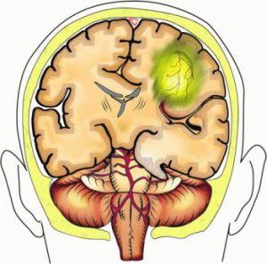 дислокация мозга