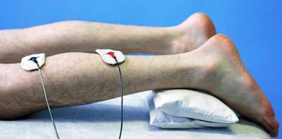Невропатія нижніх кінцівок