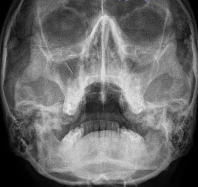 Рентген при этмоидите