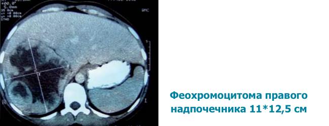feoxromocitoma