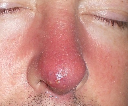Фурункул на носу у мужчины