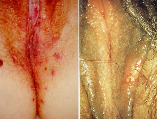 генитальный герпес у женщин