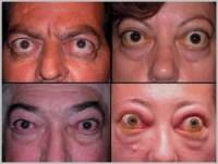 Нарушения в органах зрения