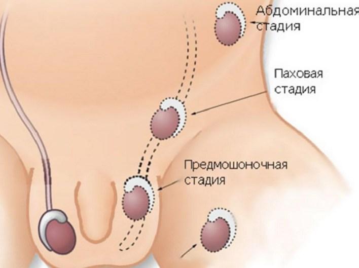Гіпотрофія яєчка найдокладніша інформація про патологію