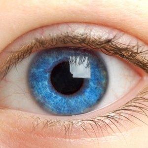синдром глазной щели