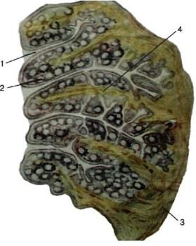 небная миндалина