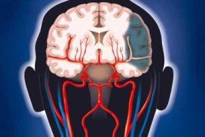 голова болит при инсульте