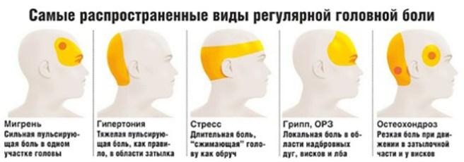 golova-vidi-boli